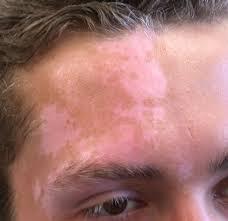 الامراض الجلديه ومرض البرص (البهاق ) واعشاب لعلاج مرض البرص