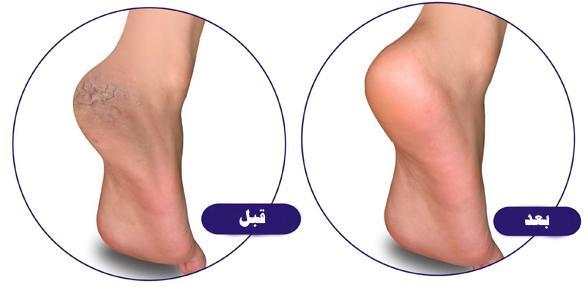 افضل الطرق الطبيعيه لعلاج تشقق القدمين