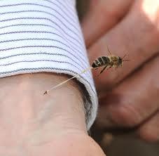 العلاج عن طريق لدغه النحل